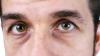 Cea mai efecientă modalitate pentru a scăpa de cearcănele din jurul ochilor: E incredibil de simplu