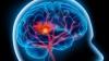 Accidentul vascular cerebral poate fi PREVENIT! Măsurile întreprinse de o echipă de medici de moldoveni