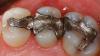 Plombele dentare ar putea dispărea! Tratamentul care REGENEREAZĂ dinţii