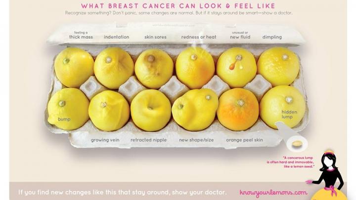 O fotografie ce prezintă mai multe semne și simptome de cancer de sân, VIRALĂ PE FACEBOOK (FOTO)