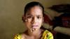 """O fetiţă din Bangladesh ar putea fi prima persoană de sex feminin diagnosticată cu sindromul """"OMUL-COPAC"""""""