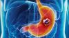 Descoperire care va salva multe vieți! Testul de respiraţie care depistează devreme cancerul