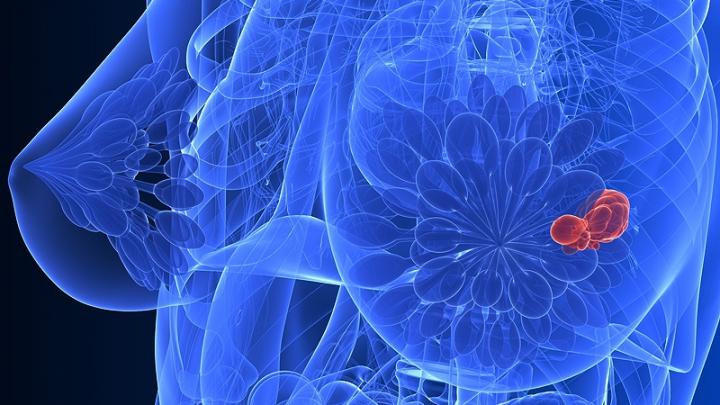 Concluzie îngrijorătoare! Femeile cu sânii mari au un risc mai mare de a face cancer