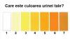 Opt tipuri de urină care indică starea de sănătate