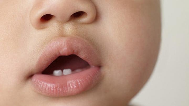 Apar dinții bebelușului? Cele 10 semne ca să îți dai seama
