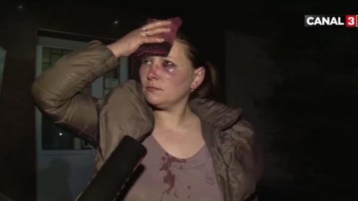 Cu lacrimile şiroaie şi faţa plină de sânge. O femeie a fost bătută cu cruzime de către propriul soț (VIDEO)