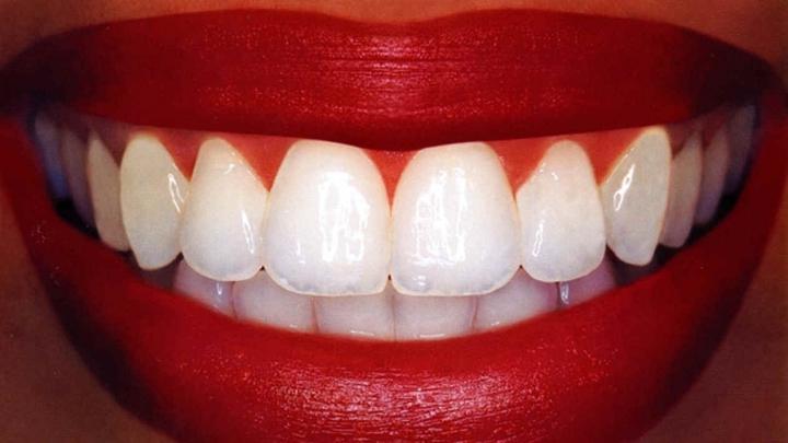 Ţi-e frică de dentist, dar ţi-au apărut carii? Cum poţi scăpa de ele chiar la tine acasă