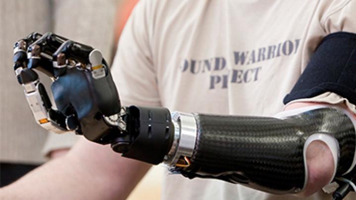 Mâna bionică, invenția care îi ajută pe cei cu deficienţe de auz să comunice