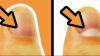 TREBUIE SĂ ȘTII! Ce reprezintă semiluna de la baza unghiilor și când e un semn de pericol