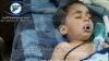 Bilanțul atacului chimic din Siria a ajuns la 86 de morți, printre care 30 de copii
