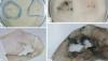 REVOLUŢIONAR! A fost descoperită o nouă ciupercă în stare să descompună materiale plastice