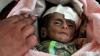 1,1 miliarde de euro ca ajutor umanitar pentru Yemen. Țara unde un copil sub 5 ani moare la fiecare 10 minute
