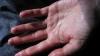 Îți transpiră palmele? Iată de ce boală poți suferi