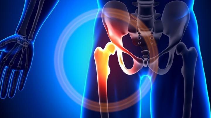 Medicii traumatologi din raioane ar putea fi instruiți de specialiști români să facă artroplastie