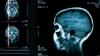 STUDIU: Care este primul semn de Alzheimer la o persoană tânără