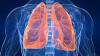 Pneumonia netratată poate fi mortală. Semnele de alarmă care anunță boala