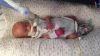MIRACOL la o maternitate. Un bebeluş născut prematur a IMPRESIONAT întreaga lume