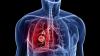 Vrei să ai un organism de fier? Află cele mai bune alimente pentru infecţiile respiratorii şi eliminarea toxinelor din plămâni