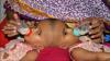 Medicii din Bangladesh evaluează posibilitatea operării a două surori siameze unite în zona capului