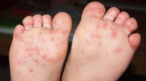 MARE GRIJĂ! Virusurile care pun în pericol sănătatea copiilor în perioada estivală. Totul despre Coxsackie