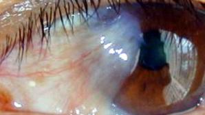 INCREDIBIL! Ce au găsit chirurgii în ochii unei bătrâne (FOTO)