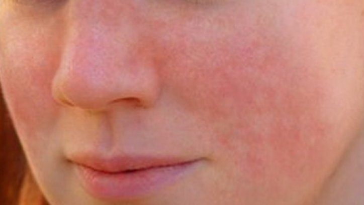 Summary -> Stress Rash Pictures Treatment Causes Symptoms