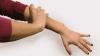 Ce probleme de sănătate anunță durerea la mâna stânga. Dacă apare brusc, mergi URGENT la medic