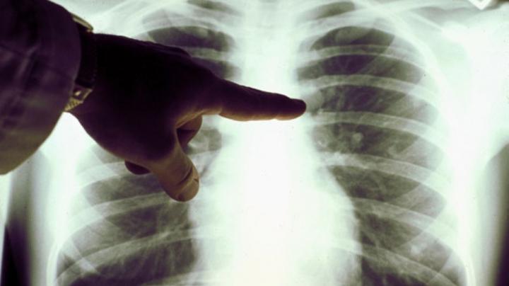 Persoanele care consumă o cantitate mare de grăsimi saturate au un risc mai mare de a dezvolta cancer de plămâni