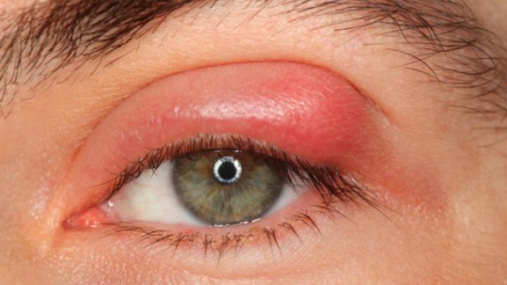Șoc pentru o femeie după ce a mers la spital pentru un control. Medicii i-au scos 20 de paraziți din ochi (FOTO)