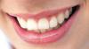 De ce de fapt se îngălbenesc dinţii. Cele 11 motive pentru care zâmbetul tau nu are strălucirea albă