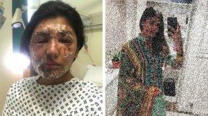 I-a fost distrusă fața cu acid la doar 21 de ani. Cum arată după recuperare (FOTO)