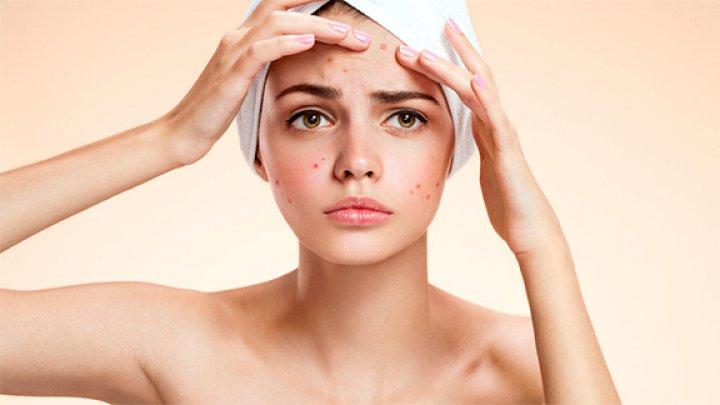 Ai probleme cu tenul? Care sunt cele patru mituri despre acnee