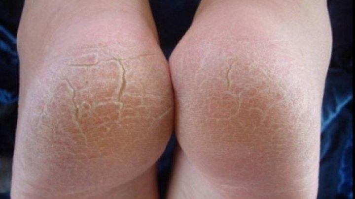 Ai călcâiele crăpate toamna?! Remedii pentru picioare sănătoase