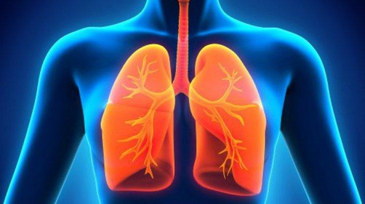 Bine de știut! Dieta care poate preveni cancerul pulmonar