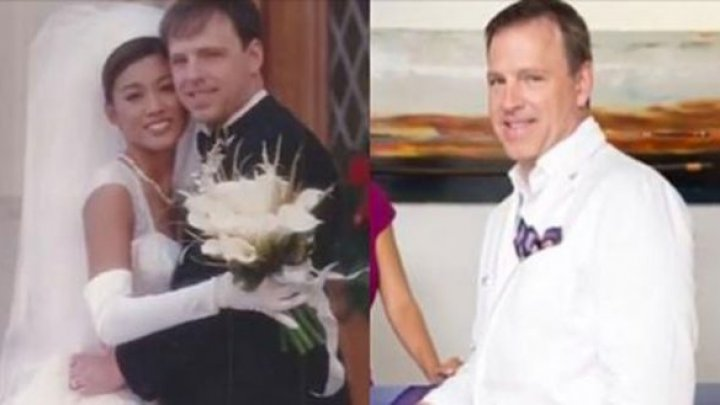 Un chirurg plastician s-a căsătorit cu o domnişoară frumoasă. Apoi i-a schimbat înfățișarea. Cum arată femeia (FOTO)