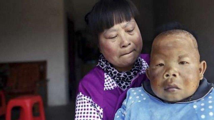 Povestea care a ŞOCAT o lume întreagă! Un bărbat în vârstă de 30 de ani NU mai creşte de la doi ani (FOTO/VIDEO)