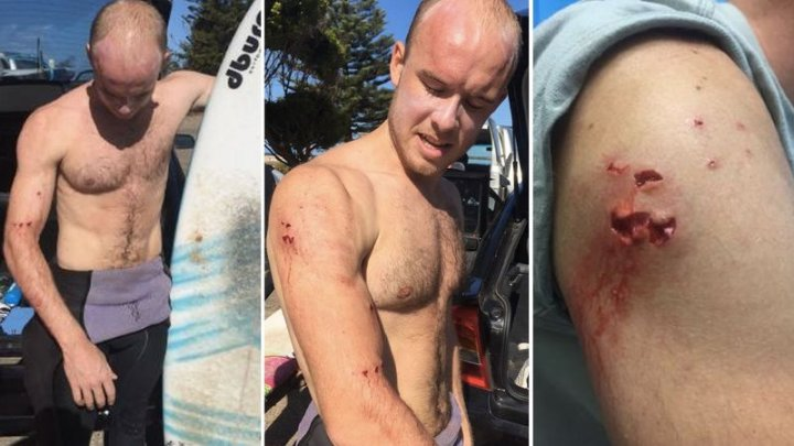 Un medic și-a salvat propria viața după ce a fost atacat de rechin (FOTO)