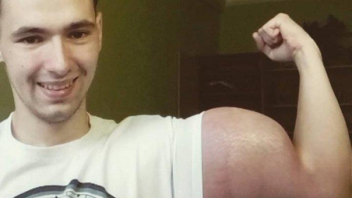 Şi-a injectat o SUBSTANŢĂ PERICULOASĂ pentru a avea bicepşi de 60 de cm. Cum arată acum braţele tânărului (VIDEO)