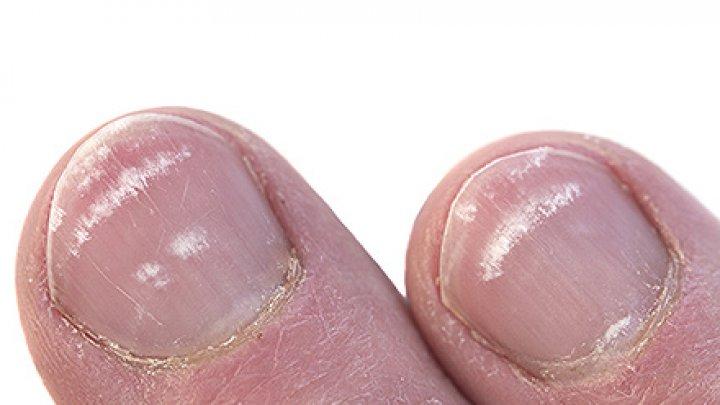 ATENŢIE! Ai grijă la petele albe de pe unghii. Pot ascunde o boală gravă