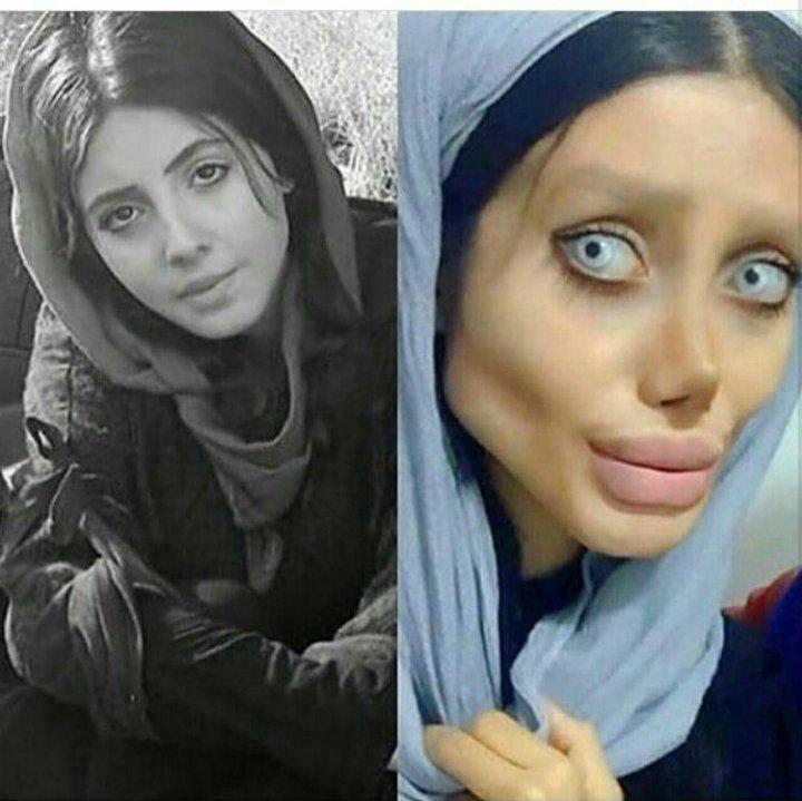 Şi-a făcut peste 50 de operații estetice pentru a semăna cu Angelina Jolie. Rezultatul este ORIPILANT (FOTO)