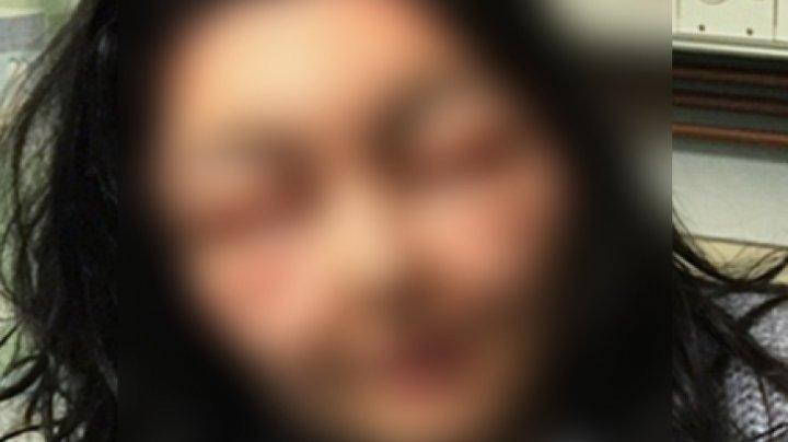 ÎNGROZITOR! A folosit un produs foarte des utilizat de femei, dar a rămas desfigurată: Arăt ca un monstru (FOTO)