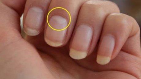 Studiu: Ce înseamnă când lipsește semiluna de la baza unghiei