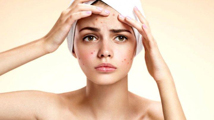 Ce trebuie să mănânci ca să eviţi apariția acneei