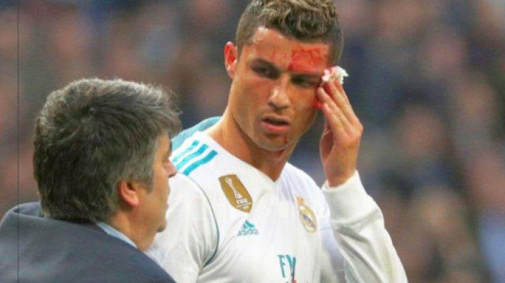 Cristiano Ronaldo, plin de sânge. S-a accidentat în timpul unui meci de fotbal