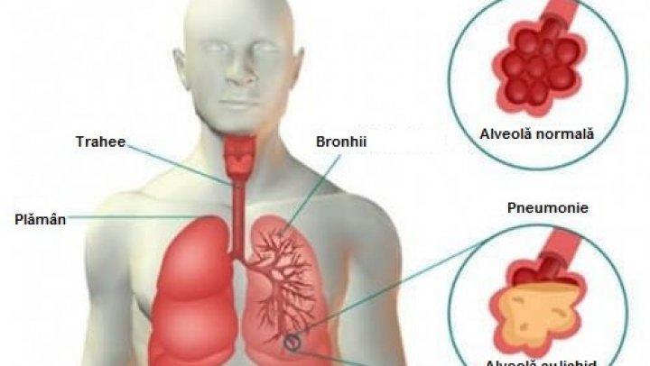 Rinită, gripă, guturai? Mergi de urgenţă la medic. Suferi de o boală extrem de periculoasă
