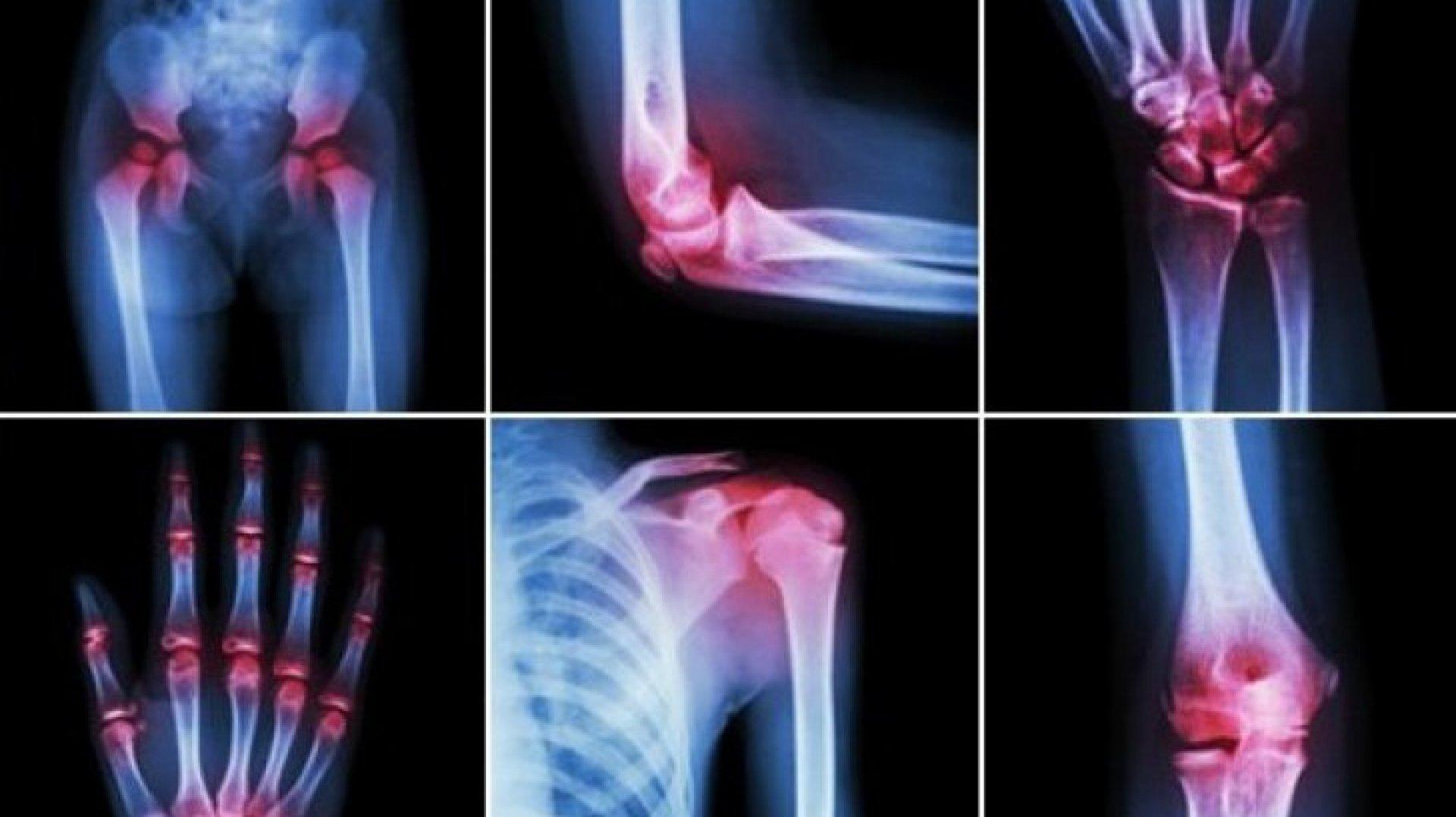 dureri de oase în articulații