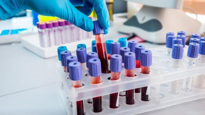 Testul de sânge care ar putea detecta riscul apariției de Alzheimer