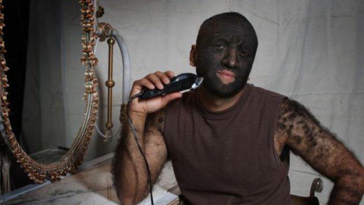 """Toţi îl numesc """"Omul-Lup"""". Cum arată cel mai păros om din lume (FOTO)"""