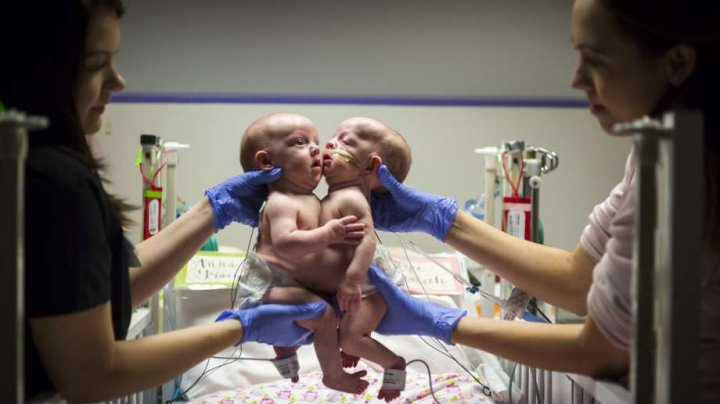 Două surori siameze, unite în zona pieptului şi a abdomenului, au fost separate cu succes de medicii americani