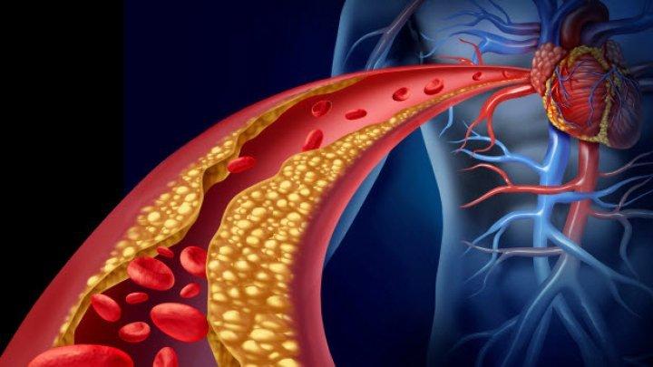 BINE DE ŞTIUT! Ce trebuie neapărat să faci dacă ai colesterolul mărit